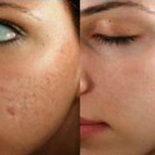 Medical Spa, Med Spa, Microneedling, Micro Needling, Beauty, Skincare