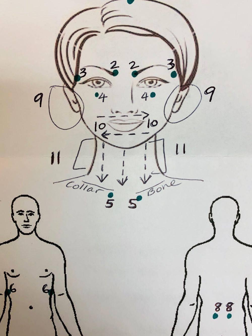 April Bui Acupuncture Clinic Houston