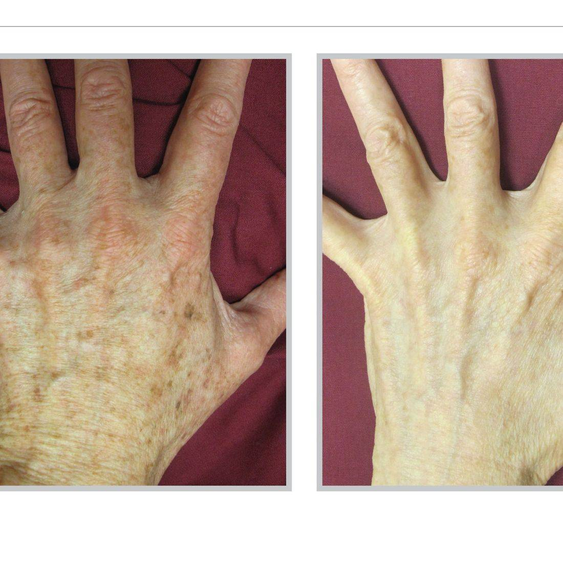 BBL Treatment Sciton Laser Reverse Aging Anti Aging Sun Spot