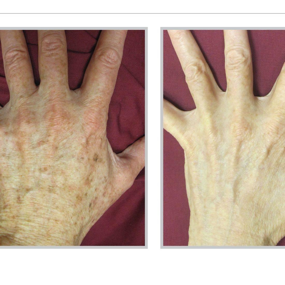 BBL Treatment Sciton Laser Reverse Aging Anti Aging Sun Spot