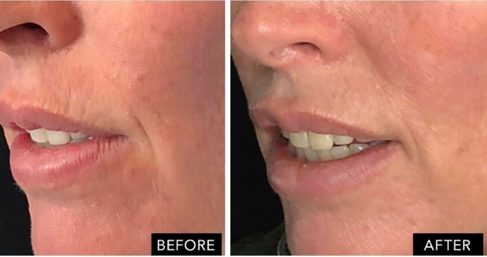 lip wrinkles anti aging cosmetic surgery