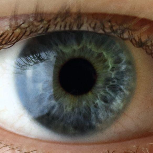 iridologue nantes rdv iridologie naturopathie naturopathe iris bilan santé