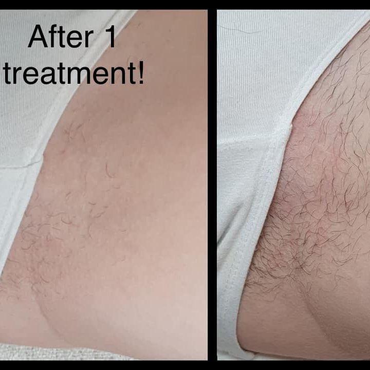 Hollywood bikini laser hair removal Nottingham