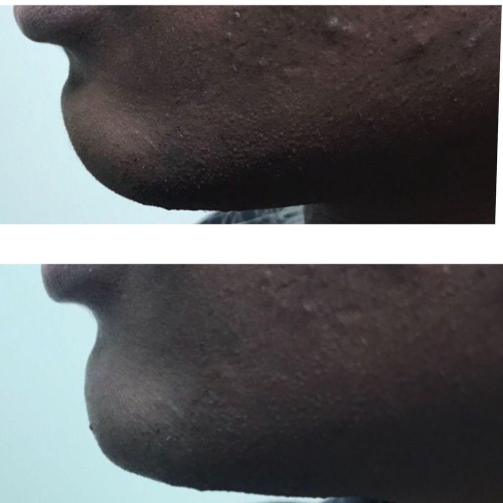 defined chin filler