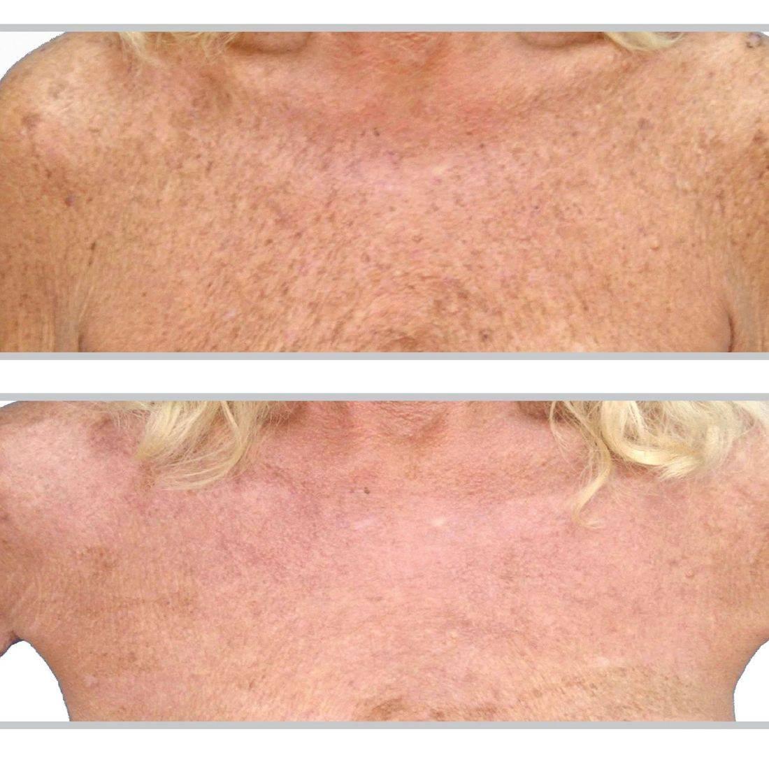 BBL Treatment Sciton Laser Age Spots Sun Damage