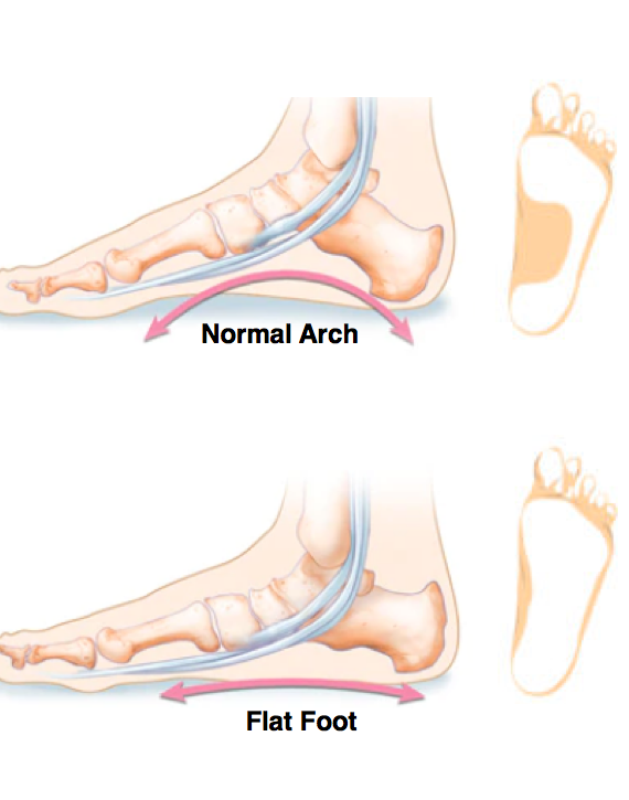 Diagram of a normal arch and a flat foot