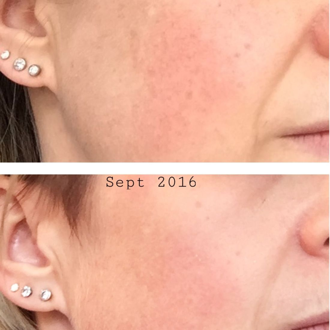 Pigmentation reduction, dermalogica, powerbright, skin treatment