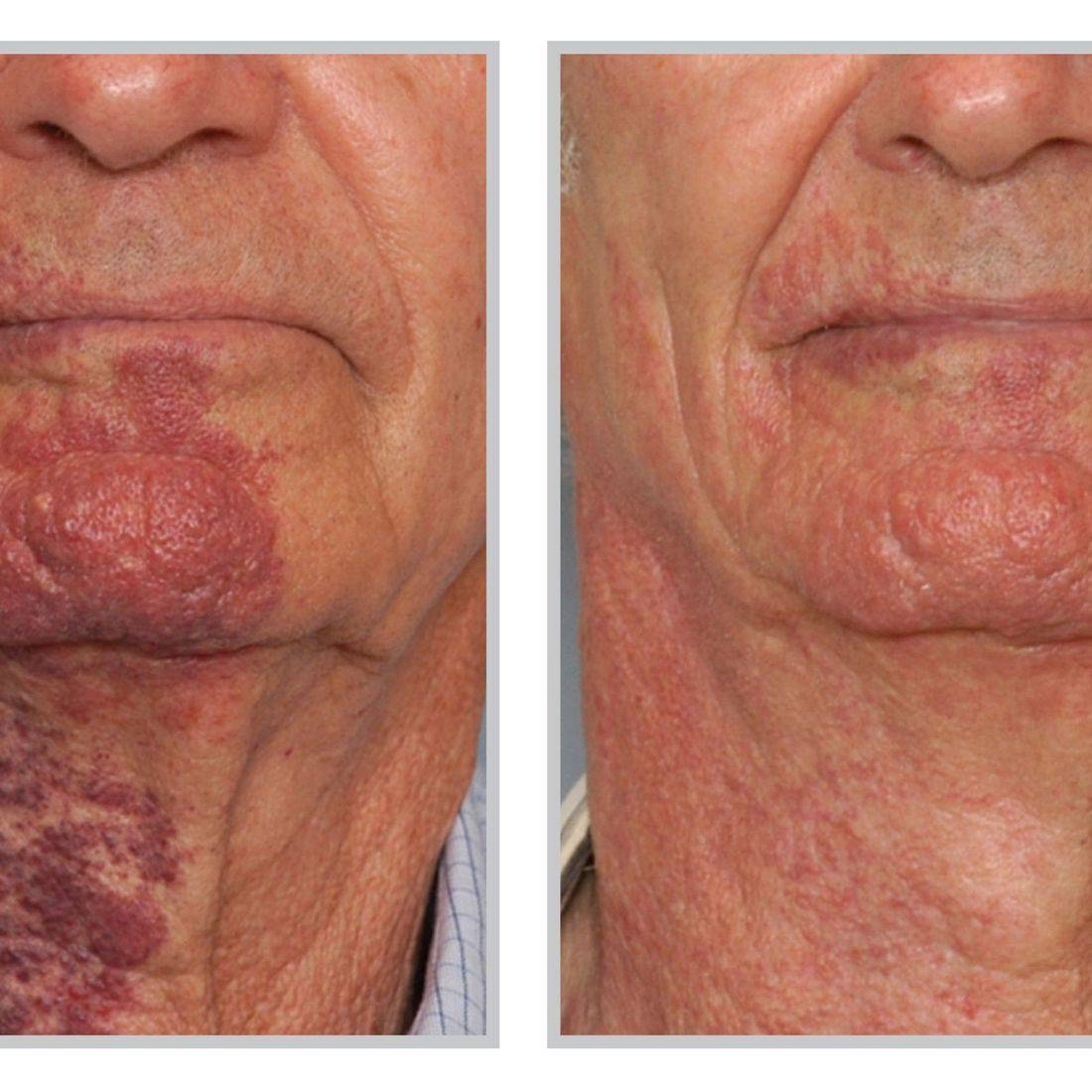 BBL Sciton Laser Birth Mark Removal
