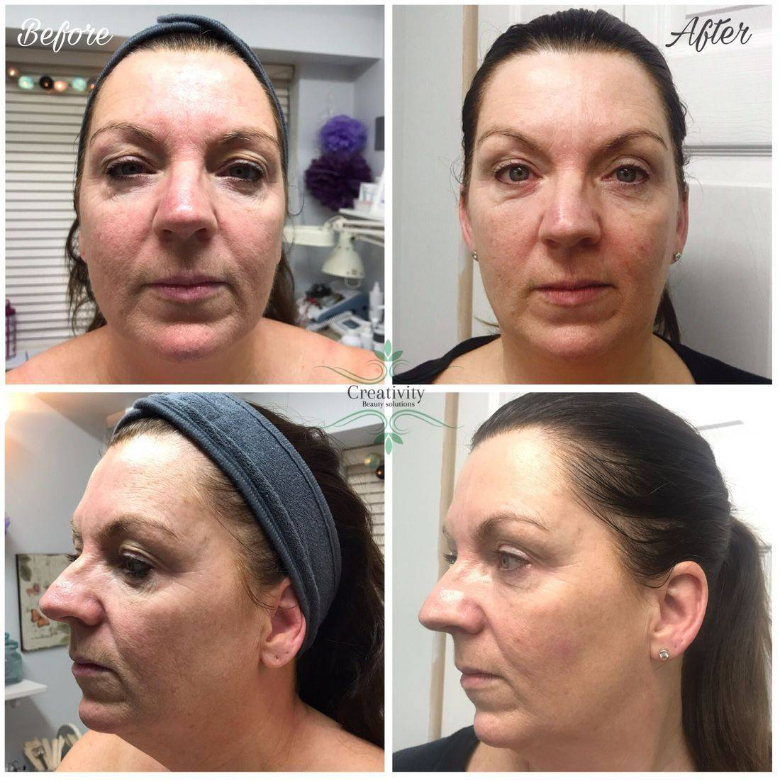 Microcurrent review, facial treatment, non-surgical face lift, caci, Creativity beauty  solutions