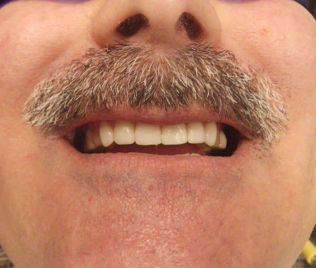Broken Teeth Fixed