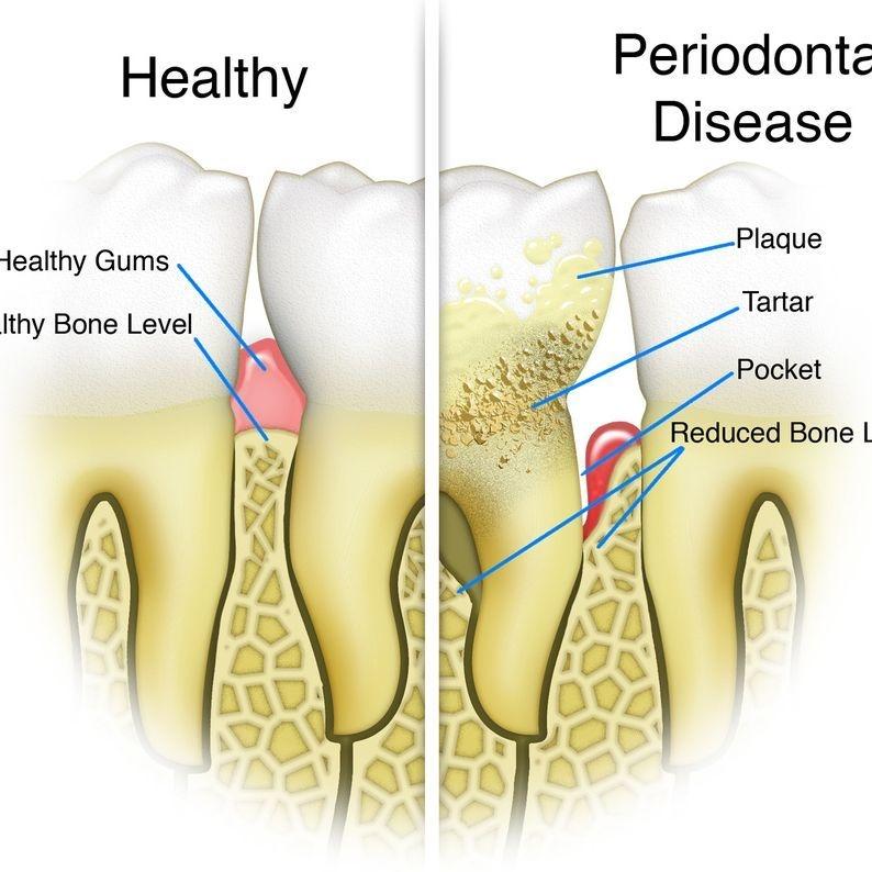 Deep cleaning, gum disease