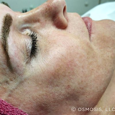 hyperpigmentation before