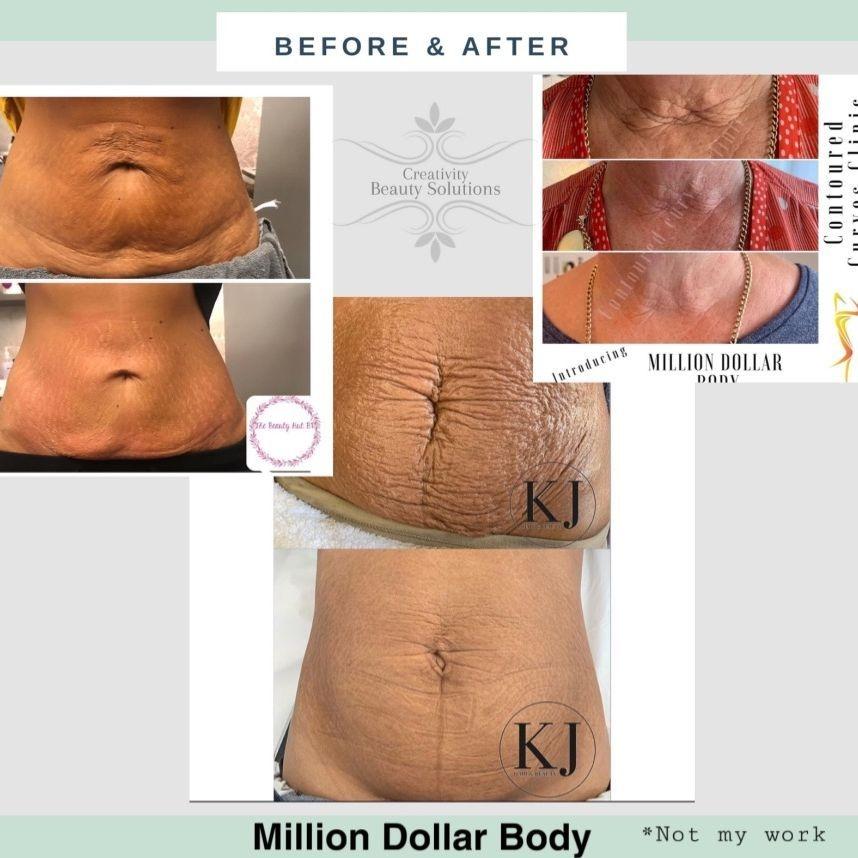 Million Dollar Body, Skin needling, strech mark treatment