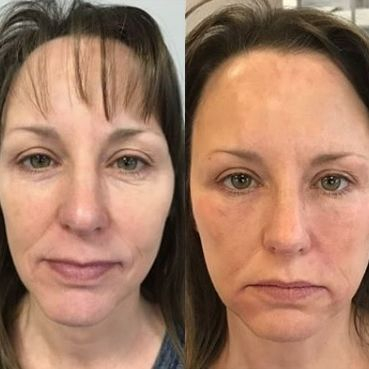 Before and after Vampire Facelift Face lift