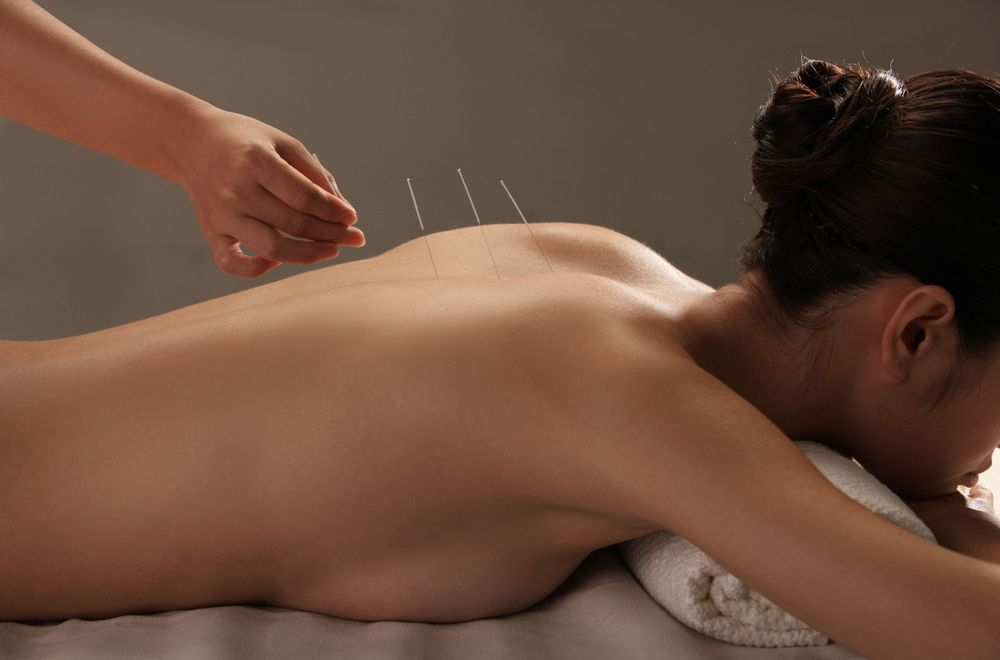 Dry Needling, Acupuncture, sports therapy, sports massage