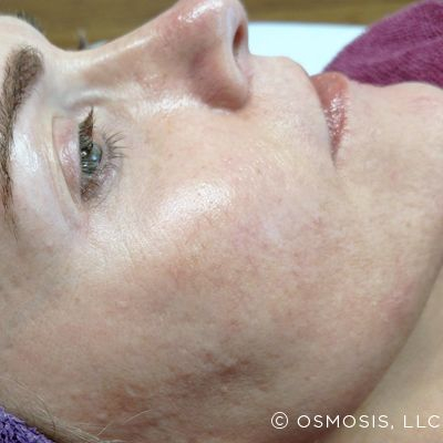 Nano Infusion for hyperpigmentation results