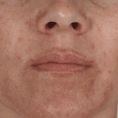 hyperpigmented skin, pigment, age spots, chloasma, melanin, pigmentation, Nimue