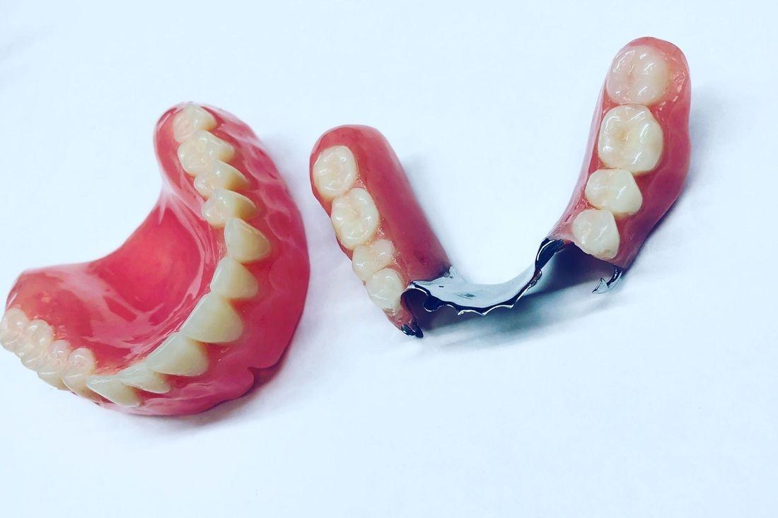 Premium Denture & Cast Partial