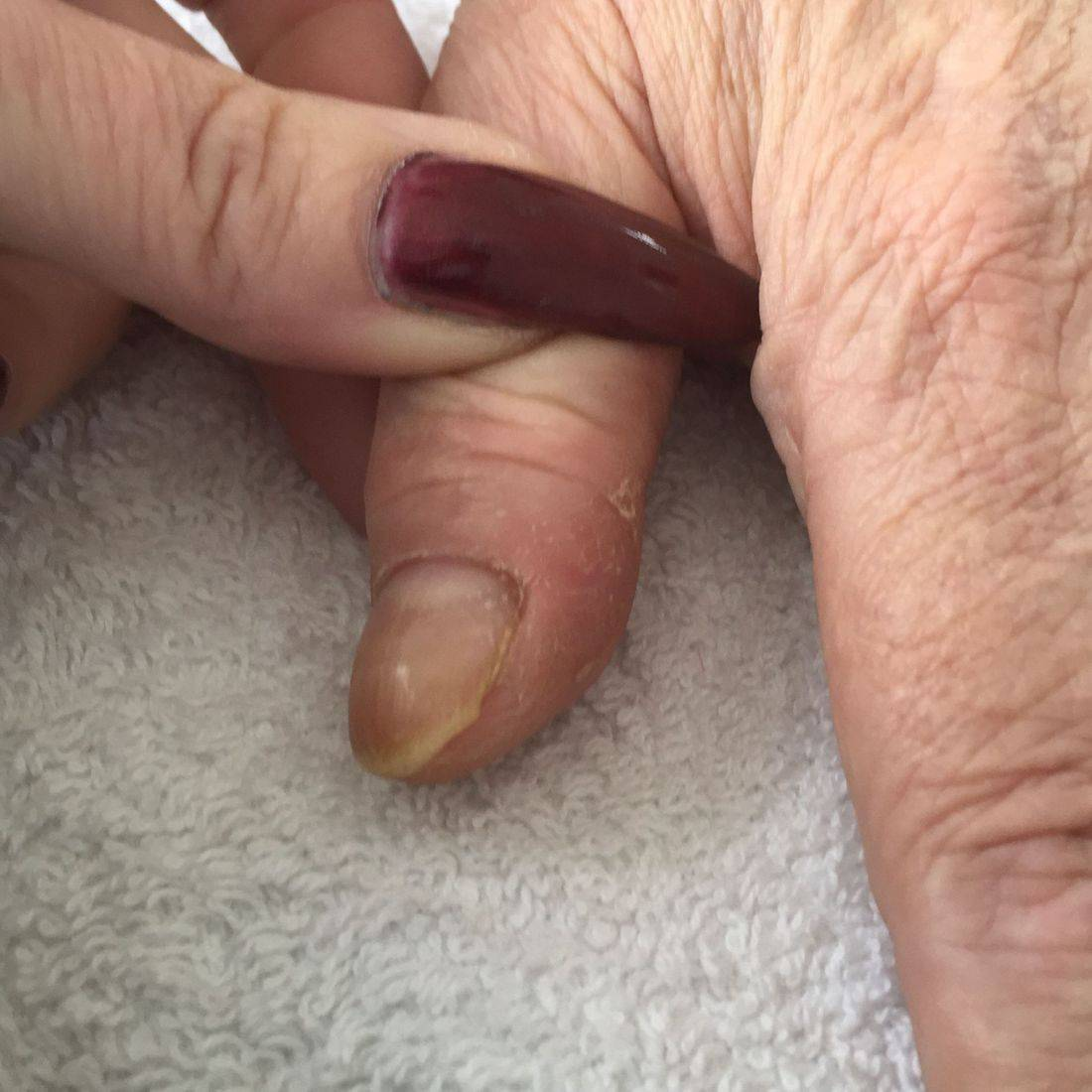 Nails before sculptured nails applied