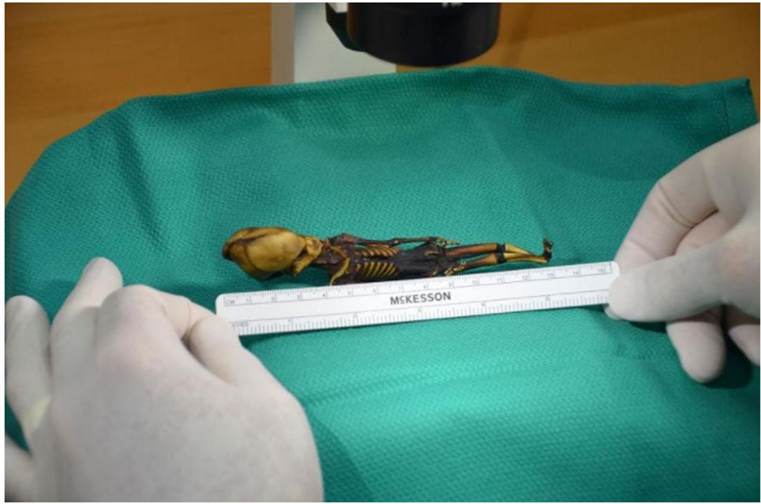 Ata n'est pas plus grande qu'un fœtus humain, mais ses os sont à peu près aussi mûrs que ceux d'un enfant de six ans.
